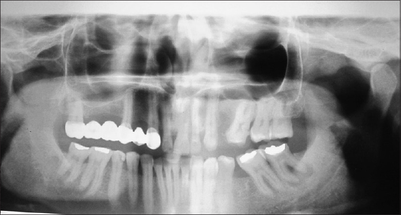 Figure 3: Panoramic radiograph showing no evidence of impacted maxillary right central incisor